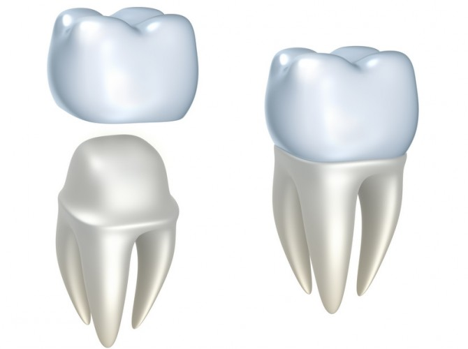 dental crowns mckinney dentist