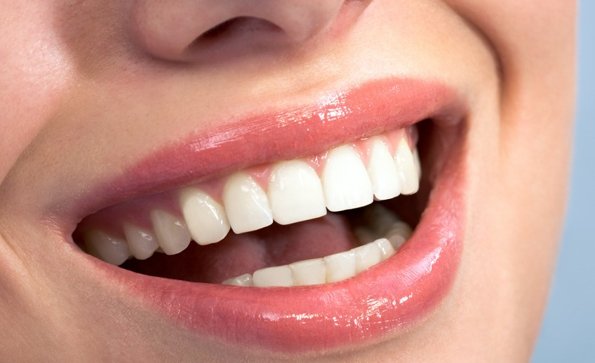 tooth colored bonding mckinney dentist