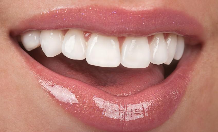 veneers mckinney dentist